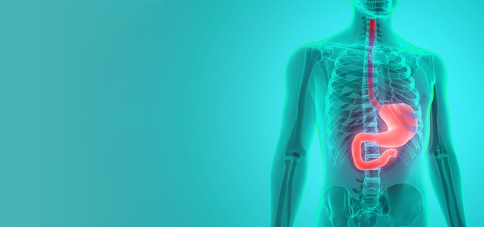 Cancer Endo-Gastro Stomach and Colorectal Cancer